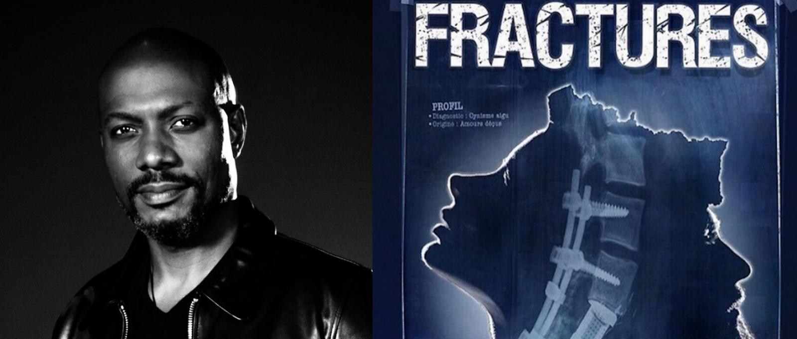 """""""Fractures"""""""